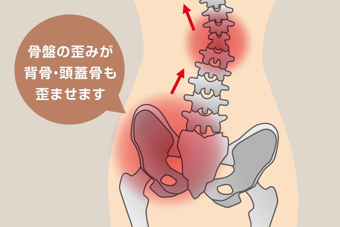 骨盤の歪みが背骨・頭蓋骨も歪ませます